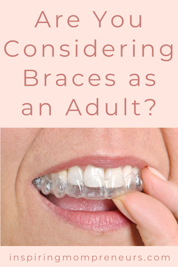 One in every five individuals past adolescence takes steps to correct their misaligned teeth.  Most prefer discreet aligners.  Fortunately, braces have come a long way.  Read on... #clearbraces #modernbraces #orthodontics #modernorthodonticoptions