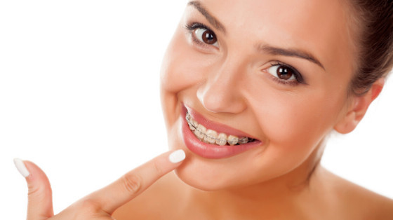 Are You Considering Braces as an Adult?