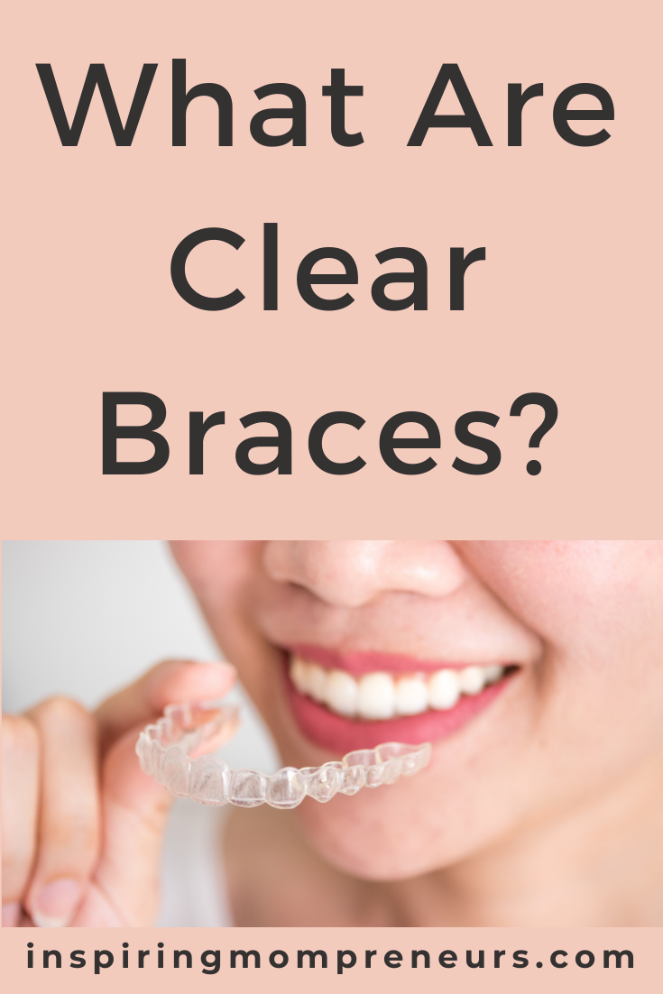 What are clear braces? Clear braces are an alternative to metal braces to align your teeth. They are almost invisible, don't have wires or brackets and most of them are removable.Here are some of the different types of clear braces available.